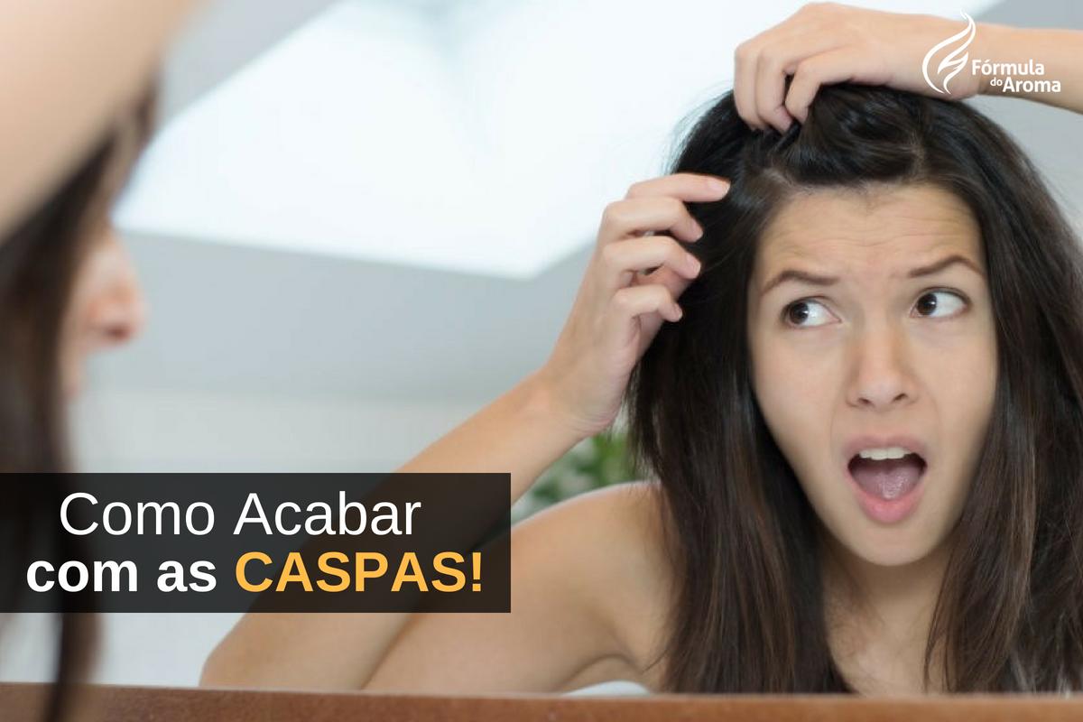 5 Remédios Naturais para Acabar com a Caspa