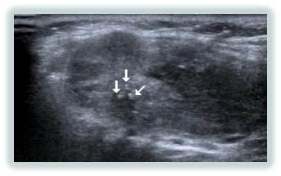 nodulo ecografia